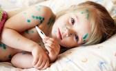 cách chữa bệnh thủy đậu cho trẻ em nhanh khỏi, hiệu quả, không lo sẹo