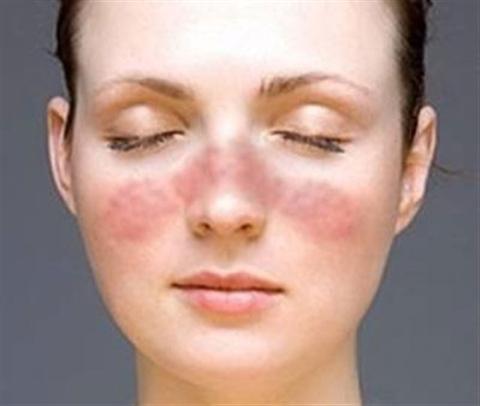 Bệnh luphus ban đỏ là gì? Triệu chứng của bệnh lupus ban đỏ. Nguyên nhân và cách điều trị bệnh lupus ban đỏ (Lupus Erythematosus, Lupus Erythemateux