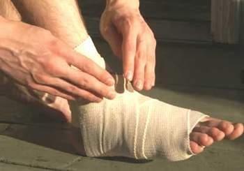 Cách chữa bong gân
