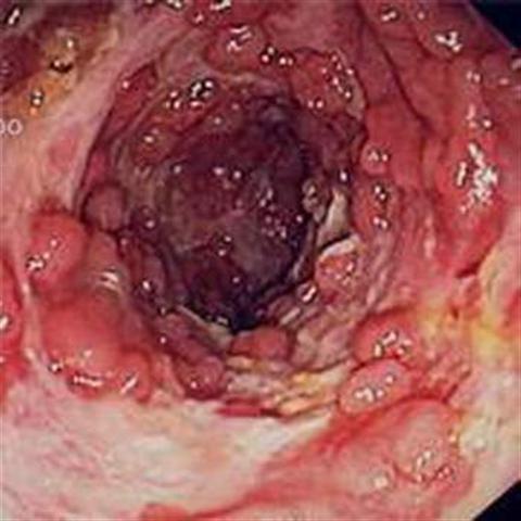 Tìm hiểu về bệnh viêm dạ dày