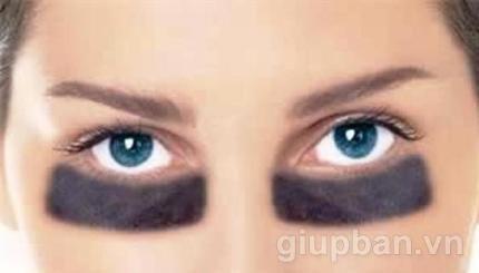 Cách trị thâm quầng mắt hiệu quả giúp bạn lúc nào cũng xinh