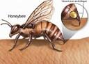 Mẹo vặt chữa ong đốt đơn giản mà hiệu quả