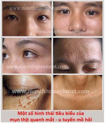 Mẹo chữa mụn thịt quanh mắt hiệu quả