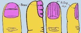 Ý nghĩa của móng tay với sức khỏe và số mệnh