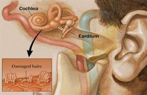 Làm thế nào để chữa bệnh ù tai ?