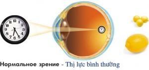 Nguyên nhân của bệnh loạn thị và phương pháp luyện mắt hiệu quả