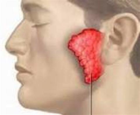 Nguyên nhân của bệnh quai bị và cách điều trị tránh tối đa di chứng. Quai bị dân gian còn gọi là bệnh má chàm bàm là một bệnh toàn thân biểu hiện bằng sưng