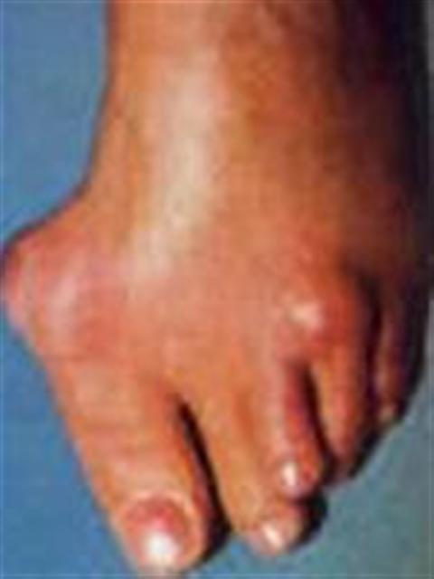 Bệnh gút nên kiêng cữ những gì? Bệnh gút là một trong những bệnh thấp khớp gây đau đớn nhất, do ứ đọng những tinh thể uric acid nhọn như kim ở tổ chức liên