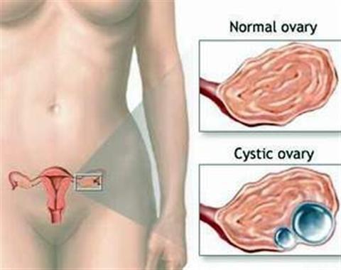 Cách điều trị bệnh đa nang buồng trứng