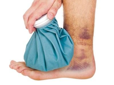 Bong gân thường xảy ra khi dây chằng bị kéo căng quá mức do tai nạn như ngã xe, trượt chân... Nếu không xử lý đúng cách, tình trạng này sẽ gây ra những hậu