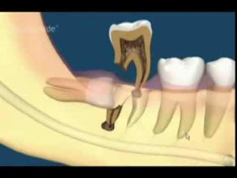 Video Clip: Chăm sóc răng sau khi nhổ răng khôn