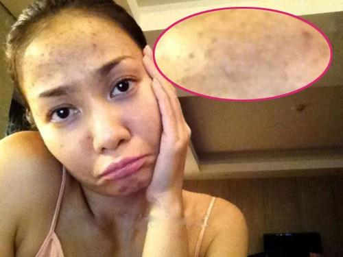 Mụn khiến làn da bạn xấu xí, đôi lúc còn làm bạn đau. Cho nên khi bị mụn bạn chỉ muốn loại bỏ chúng ngay tức thì? Chính vì tâm lý nóng vội đó, nhiều người đã