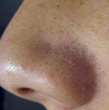 Cách lột mụn đầu đen ở mũi bằng phương pháp tự nhiên